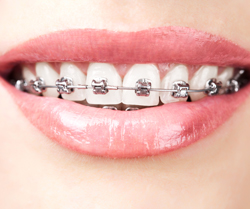 woman with metal braces