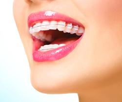 woman with ceramic braces